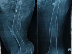 Help my grandmother for thighbone joint surgery