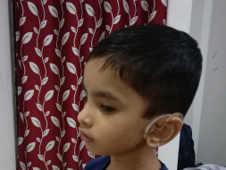 Help Shrijay Undergo Cochlear Implant Surgery