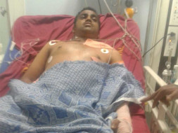 Help My Brother Recover From A Major Accident