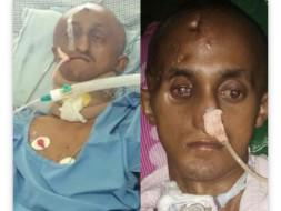 Accident Caused Severe Brain, Throat, Eye Damged. #PleaseHelp