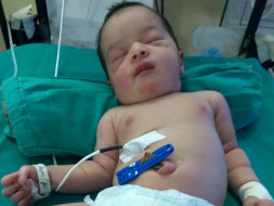 Help 3-month-old Alfa Recover From Seizures