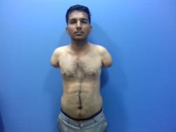 Help Prema Undergo Upper Limb Transplant Surgery