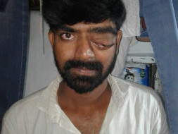 Help Muthyal Rao to Fight against Brain Tumor & Eye fitsula
