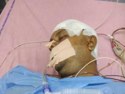 Help My Friend Undergo A Head Surgery