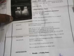 Help Me To Get Treated For Liver Treatment