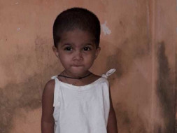 Help My Daughter Undergo Heart Surgery