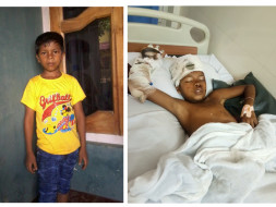 Run Over By A Truck, 9-Year-Old Boy Has No Family To Help Him