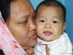 Baby Andrina needs your help to survive