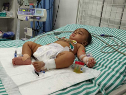 Help 5 months baby Sharvesh having septic spreads acroos body
