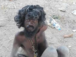 Help Sivanandham Anna To Save His Hands