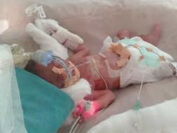 Help Critical Pre term Twin babies in NICU
