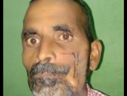 Kamlesh Kirar  figting with Cancer please support him