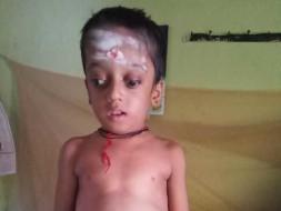 Help Ananth Undergo Bone Marrow Transplant