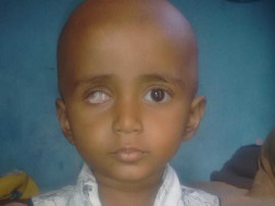 Help Divya Fight Eye Cancer