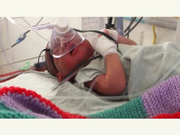 Help Our Baby Girl's Treatment for Brain Infection
