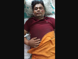 Help Vijay Recover From An Accident