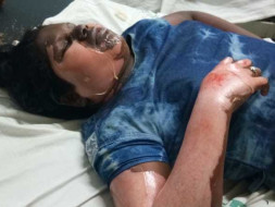 Support Harshitha Recover From An Accident