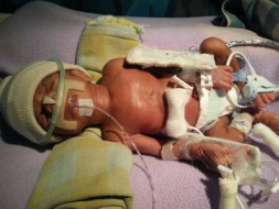 13 days baby in NICU