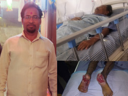 Help to raise fund for my father's both heels plastic surgery