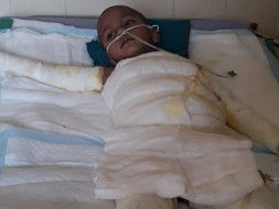 Help 4-year-old Krishive Recover From 2nd Degree Burns