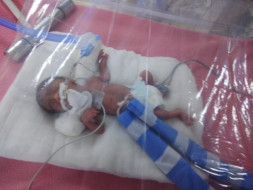 Help Sheetal's baby fight Premature Birth Defect