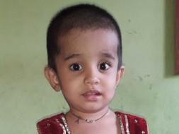 Help little Mishkat Undergo Cochlear Implantation Surgery
