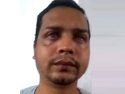 Help Premsingh Undergo An Eye Operation