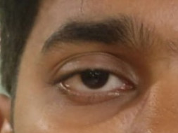 24 yr old Ashish needs help for his eye surgery