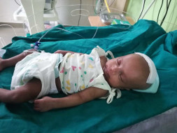 Help BABY recovery from cerebral Abscess