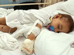 Help My Little Daughter Recover from a Fatal Accident