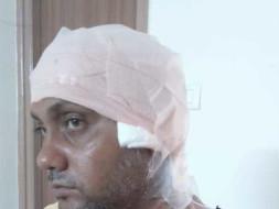 Help Guru Chandra a father of two girls in fighting brain tumor.
