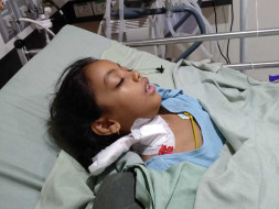 Help Anvisha to fight from Rear NMDA encephalitis