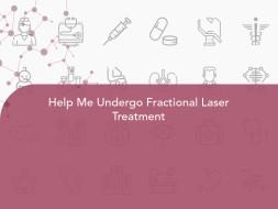Help Me Undergo Fractional Laser Treatment