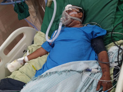 Please Help Yogendra Recover From Traumatic Zygomatic Fracture