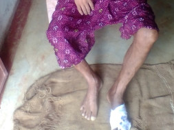 Support My Father Undergo Medical Treatment For His Infected Foot.