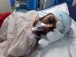 Matloop Head Surgery Needs For Help Urgently