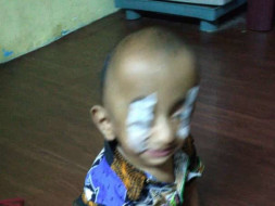 15-month-old Baby Suhail Life Can Be Changed With An Urgent Surgery.