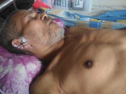 Help My Uncle Faraque To Recover From Pott's Disease.