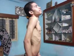 Help Shreyas fight the last stage of rheumatoid arthritis(HLA B27+ve)