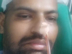 Help My Brother Nusrat Undergo Brain surgery