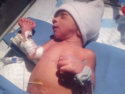 Help My Premature Baby Son To Recover From ICU