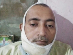 Help Mukesh Fight Oral Cancer