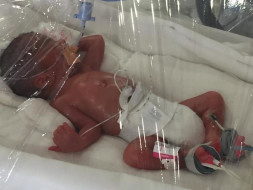Help Premature Baby Born At 27week 750gms Operated For Gut Perforation