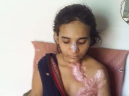 Help khushi fight to live with dignity