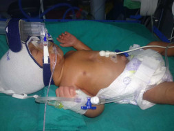 Help My Baby Recover From Respiratory Distress Syndrome