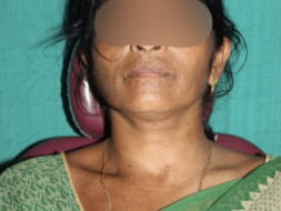 Help Purna To Recover From Trauma of an Accident
