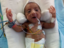 Please Help Us Save Our Preterm Baby