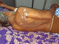 Help Rajendra Recover From An Accident!