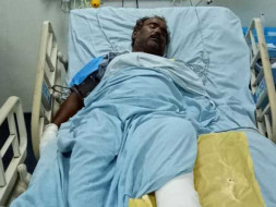 Help My Uncle Recover From Multiple Skull and Facial Bones Fracture