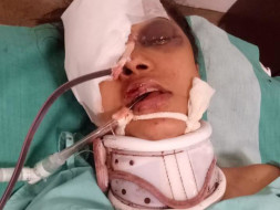 Help My Friend Krithika From An Accident